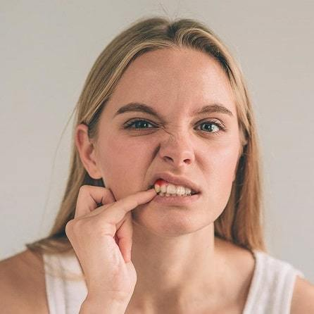 Abscessed tooth; how to care for a tooth abscess