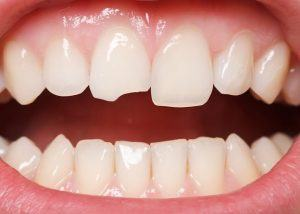 A cracked tooth or filling