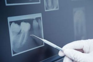 How does the dentist know if an extraction is needed-min