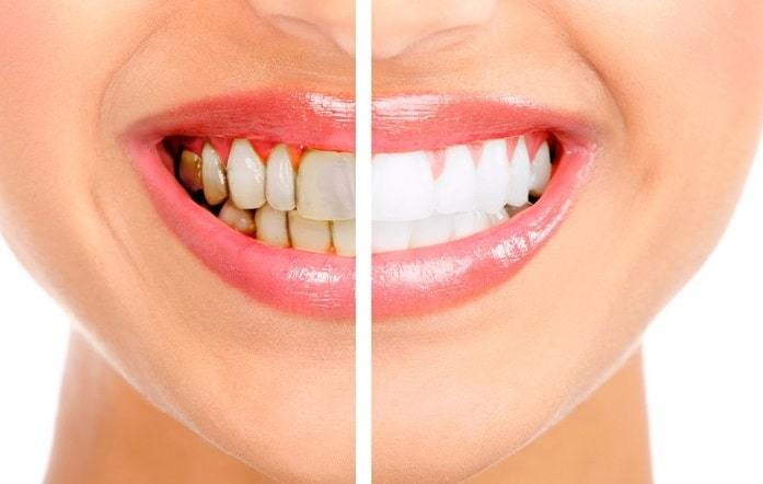 Teeth Whitening Options Professional And At Home Whitening In Our