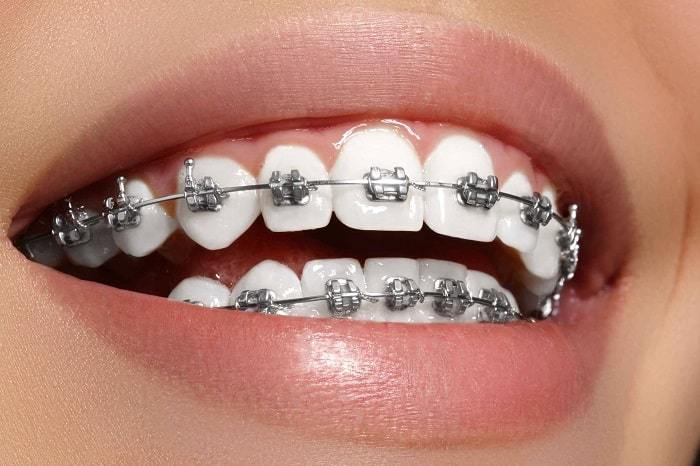 Metal brace to align and straighten crowded teeth