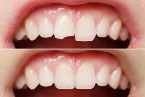 What dentists Can Do for broken tooth repair