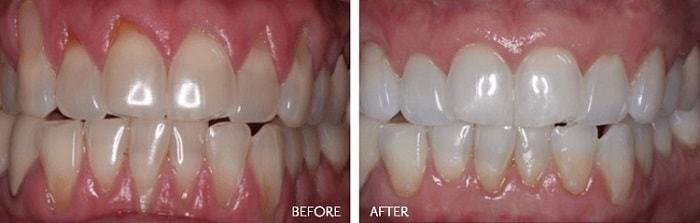 gum flap surgery for periodontal disease