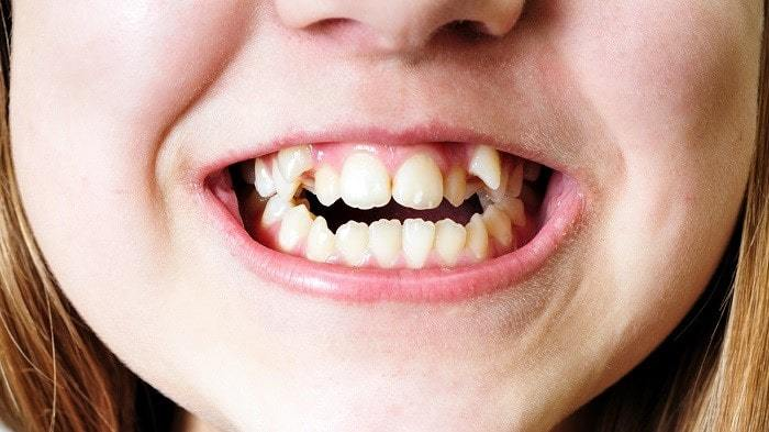 Overcrowded Teeth Brace And Retainer For Severely Crowded Teeth Dentist In Santa Rosa