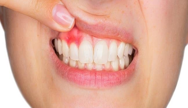 What is a dental abscess-
