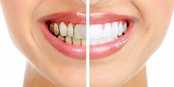 teeth stain causes