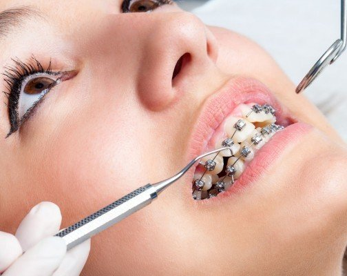 Are straight teeth the only benefit of getting orthodentics