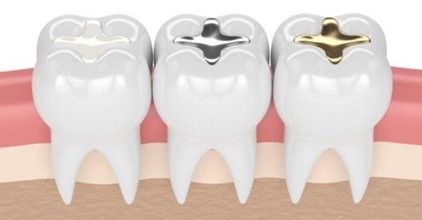 Tooth cavity filling by silver and composite material