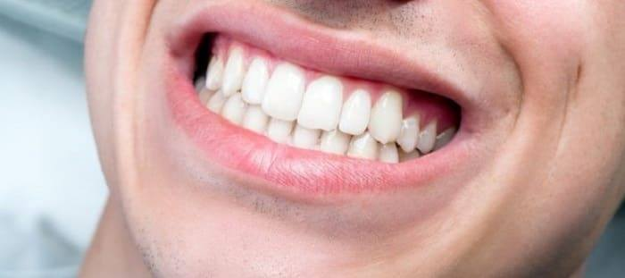 What Are the Treatments for Bruxism