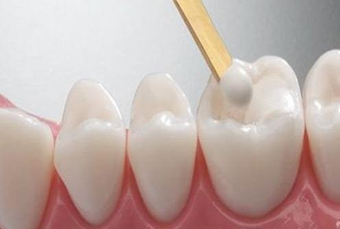 White fillings (Composite and resin)