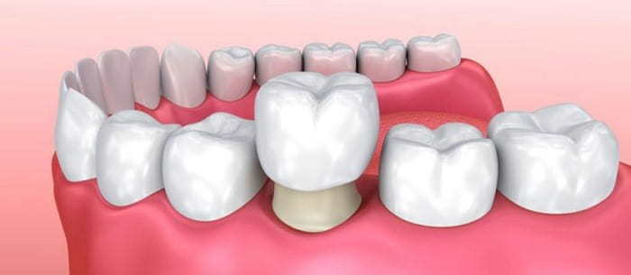 When would I need a dental crown