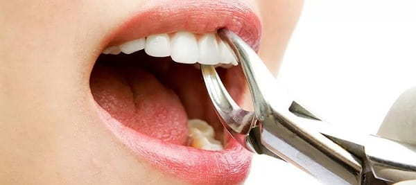 Types of tooth extraction