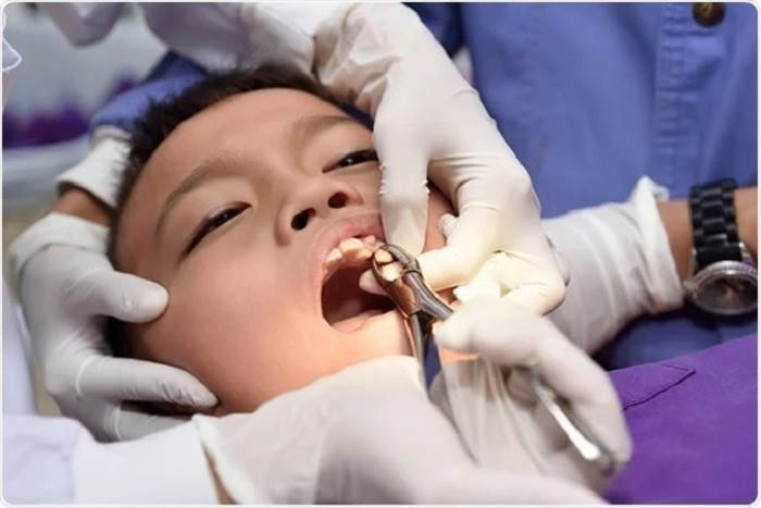 Simple Dental Extraction