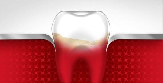STAGE 2- EARLY PERIODONTITIS